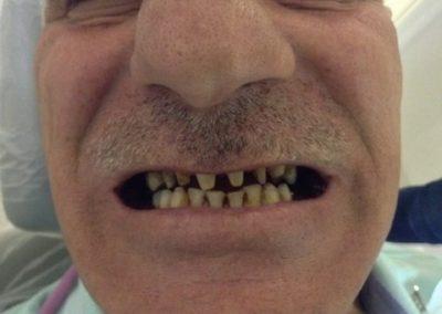 Dentist in tijuana mexico 1