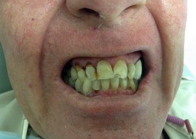 Dentist in tijuana mexico 11