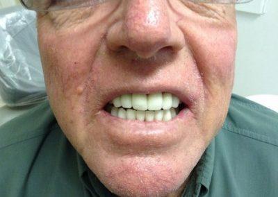 Dentist in tijuana mexico 12