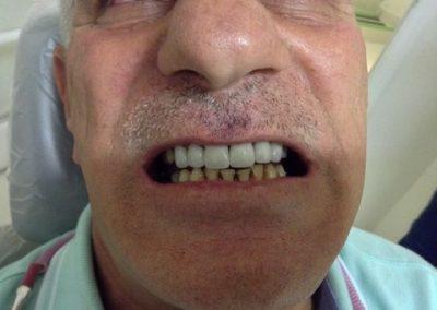 Dentist in tijuana mexico 2