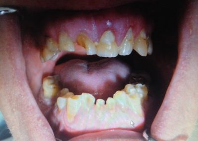 Dentist in tijuana mexico 3