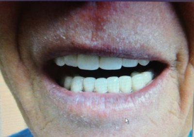 Dentist in tijuana mexico 4