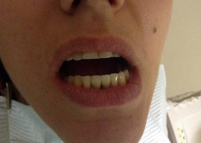 Dentist in tijuana mexico 6