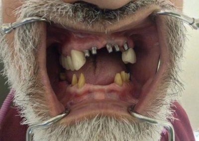 Dentist in tijuana mexico 7