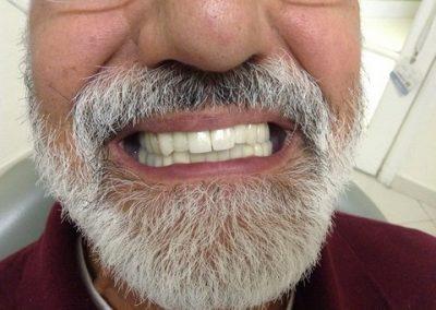 Dentist in tijuana mexico 8